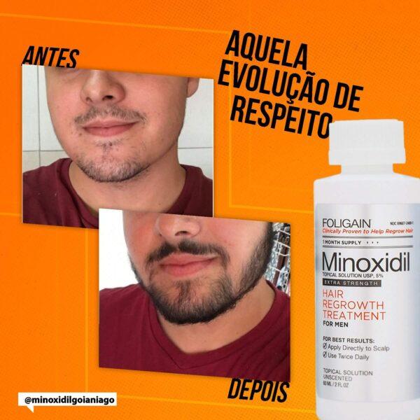 resultados 6 minoxidil kirkland