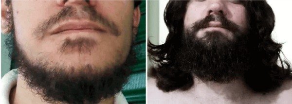 mario antes e depois