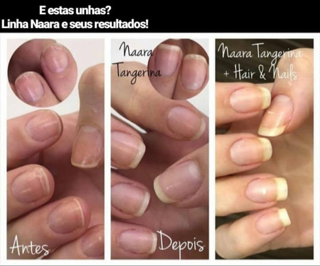 antes e depois unhas