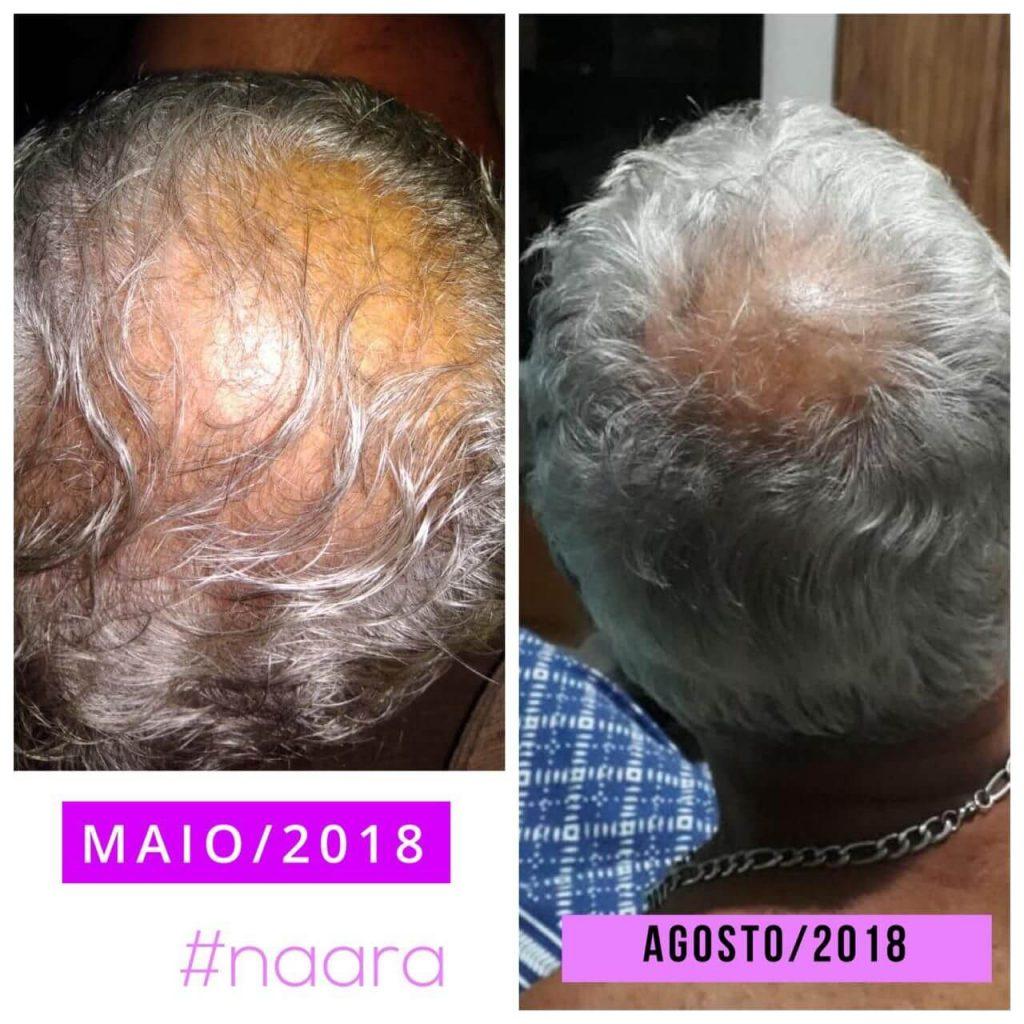 resultados 3 meses
