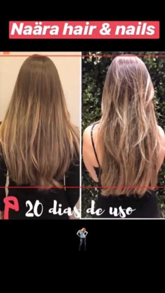 antes e depois 20 dias