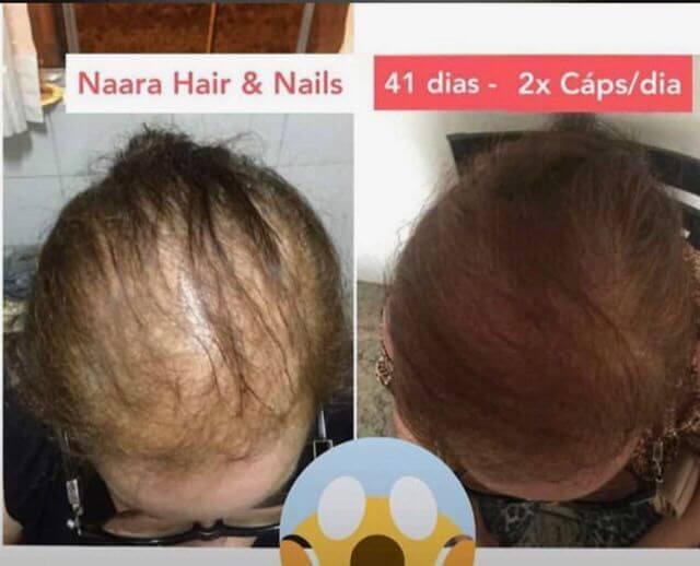 antes e depois de 41 dias usando duas vezes por dia