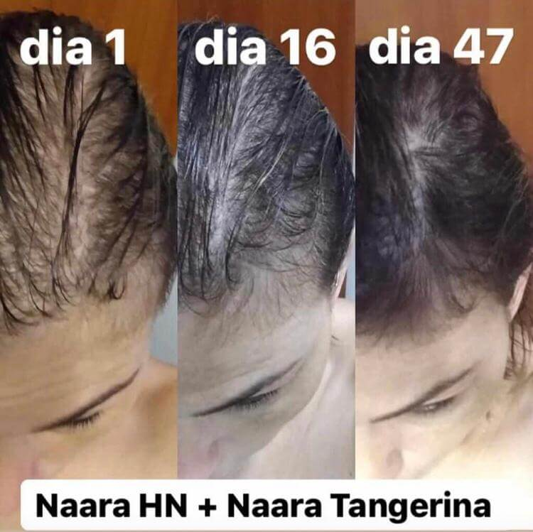 antes e depois de 47 dias usando naara hair and nails