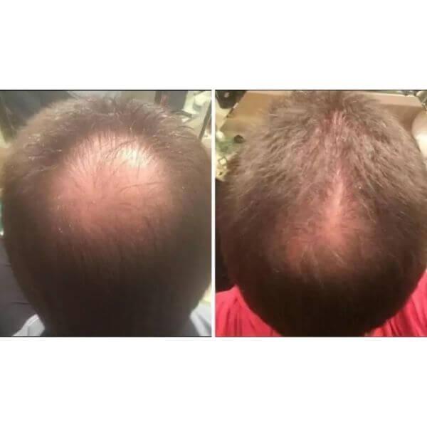 1 mês de tratamento