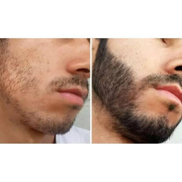 antes e depois de tratamento usando minoxidil kirkland diariamente