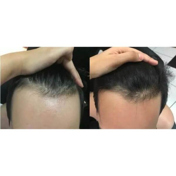 resultados do minoxidil kirkland parte da frente do cabelo