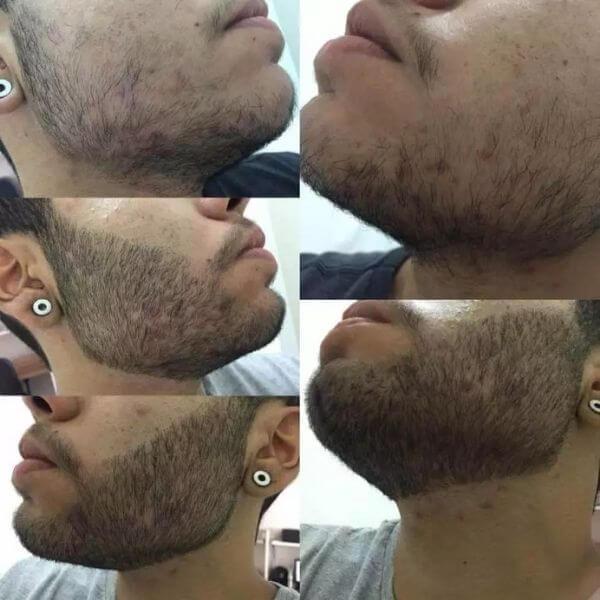 2 meses de tratamento