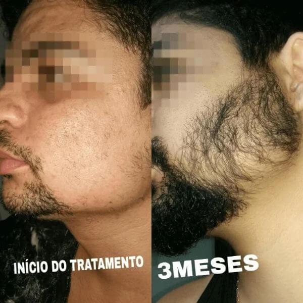 resultados de 3 meses na barba usando minoxidil kirkland