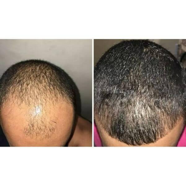 antes e depois de 3 meses de tratamento