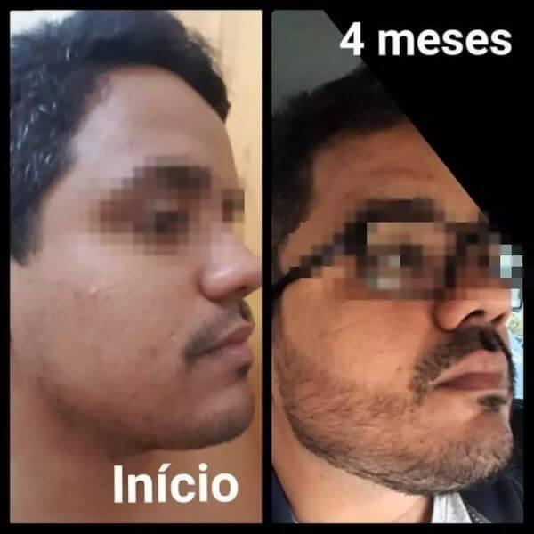 resultados de 4 meses
