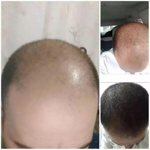 5 meses de tratamento