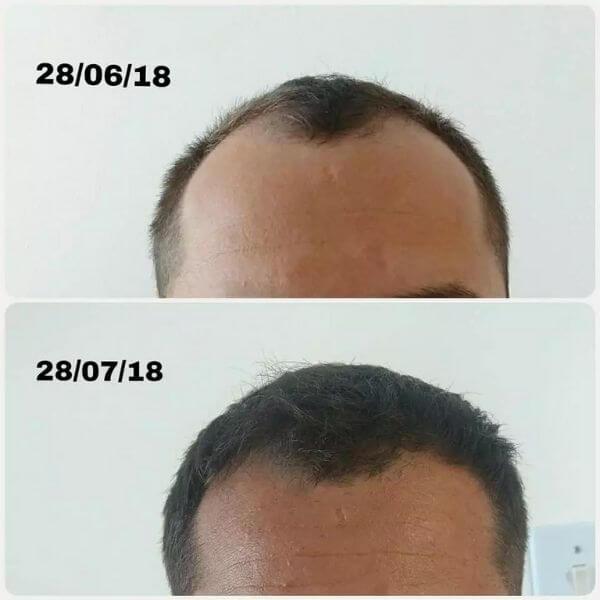 um mês de tratamento