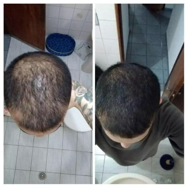dois meses de tratamento